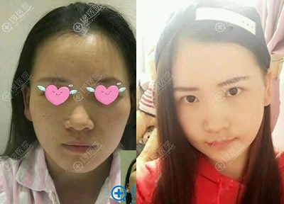 北京南加何照华做颧骨手术案例