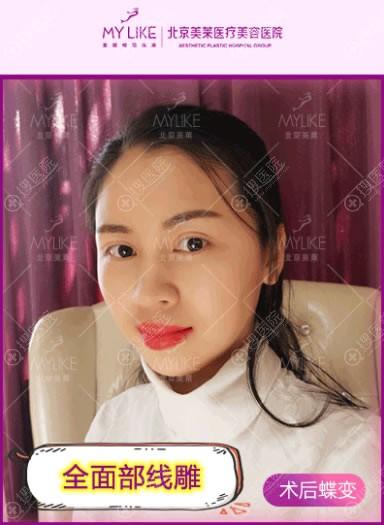 北京美莱宋长绪面部线雕案例