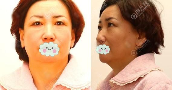 在华韩做面部提升手术前