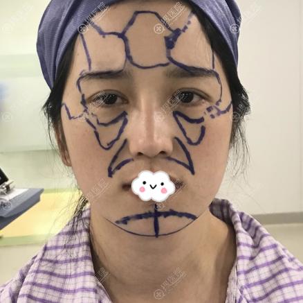 在上海华美做膨体垫下巴术前照片