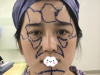 为了改善面部轮廓,我找上海华美李健做了膨体垫下巴和脂肪填充