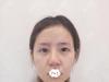 公开我花68000元找南京美贝尔黄名斗做隆鼻失败修复的亲身经历