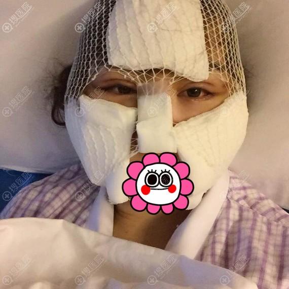颧骨手术术后肿成猪头状
