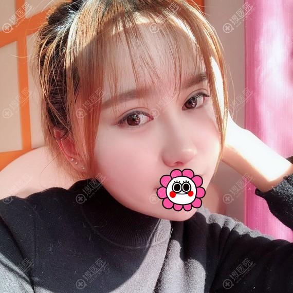 杭州华山连天美颧骨手术三个月变化