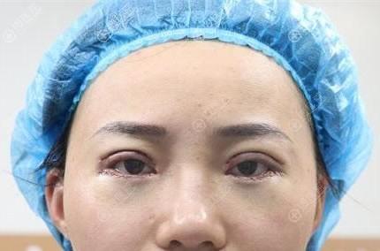 刚做完外切去眼袋和双眼皮图片