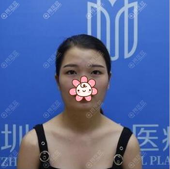 在深圳美加美做眼睛隆下巴术前照片