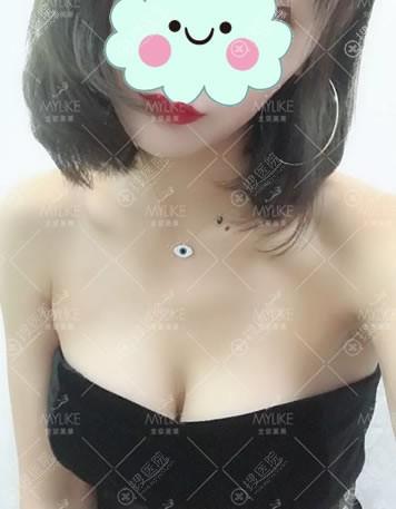 北京美莱美容医院隆胸案例