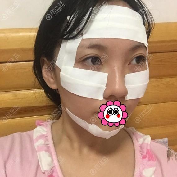 广州名韩做自体脂肪填充面部术后即刻