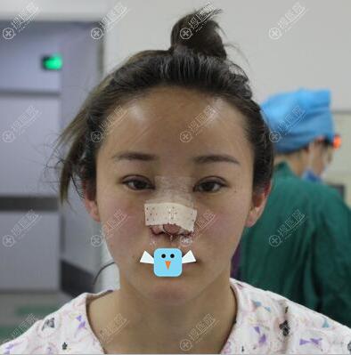清潭FIRST李丙玟眼睛鼻子整形术后即刻效果图