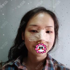 广州画美做完鼻综合术后