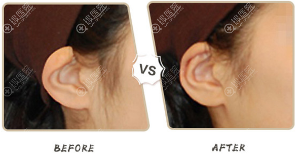 profile整形医院折叠耳矫正前后对比图