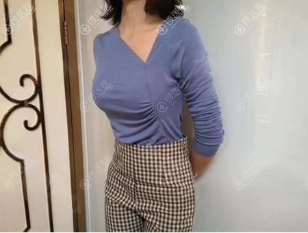深圳格美黄印资胸部修复术后效果