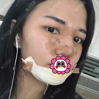 隆鼻垫下巴术后恢复三天