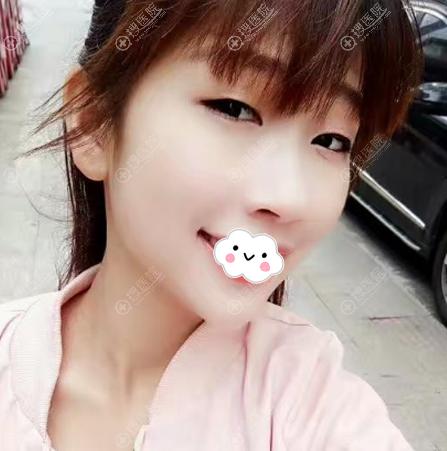 在上海仁爱医院做双眼皮术前照片