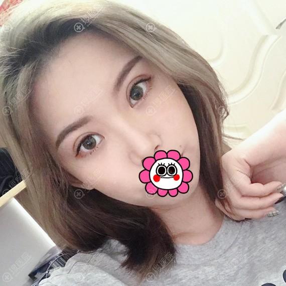 广州可玫尔双眼皮恢复半个月效果