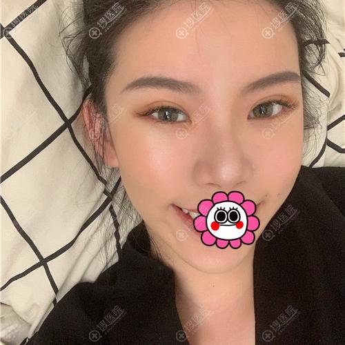 广州可玫尔双眼皮恢复一个月案例