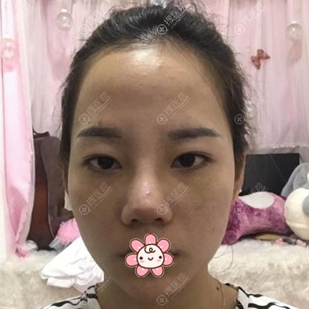 去上海仁爱医院做隆鼻术前照片