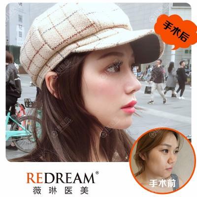 上海薇琳医美曹芳做的鼻综合隆鼻子案例