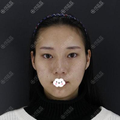 在贵阳华美做双眼皮开眼角术前照片