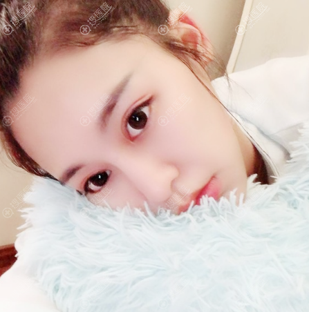 上海薇琳双眼皮眼综合术后一个月效果图