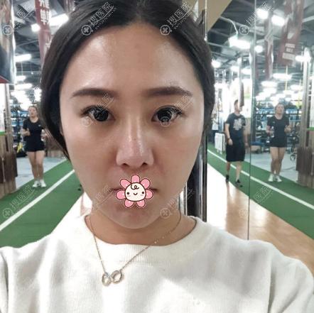 在上海薇琳做隆鼻失败修复术前照片