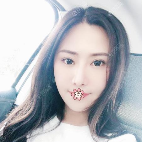 上海薇琳张怀军做的隆鼻修复和双眼皮案例