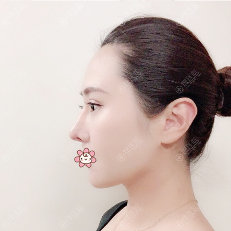 上海薇琳张怀军做鼻子很靠谱