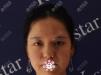 找杭州yestar整形医院杨连华做完双眼皮感觉医院挺正规靠谱的