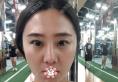 打听到上海薇琳张怀军做鼻子很靠谱就找他做了隆鼻修复和双眼皮