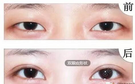开扇双眼皮效果对比图