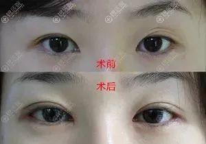 平扇双眼皮对比图