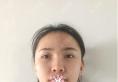 鼻梁宽大的我找上海愉悦美联臣汪泽群做完肋软骨隆鼻后成功改善