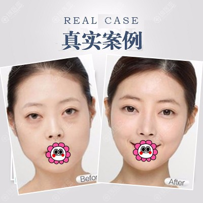广州广大祛眼袋案例
