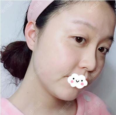 武汉华美付国友颧骨手术术后半个月效果图