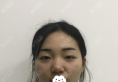 肉肉脸女生找杭州美联致美贾东宇做了埋线提升不但瘦脸还减龄
