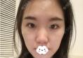 找韩国碧夏整形医院李珉仕(奭)院长做双眼皮隆鼻只为相亲不将就