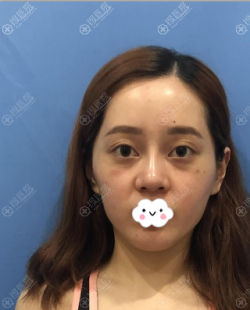 找南京美贝尔张永升做肋软骨隆鼻+全脸脂肪填充这变化也太大了