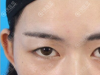 爱美的老妈给我预约了成都悦好胡纯兵做切开双眼皮+提肌手术