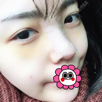 术后4天鼻部明显消肿