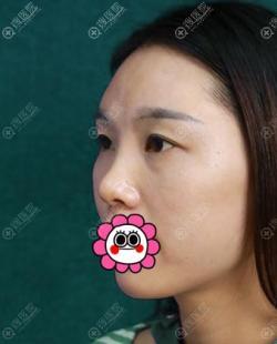 南京美莱给我做的膨体隆鼻恢复三个月后效果自然可揉捏