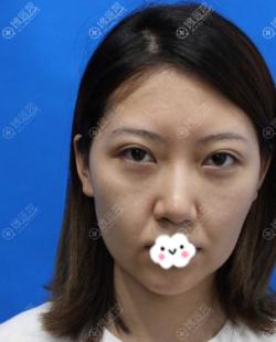 脸上皮肤下垂南宁贺尔美韦婷建议我做玻尿酸丰苹果肌+埋线提升