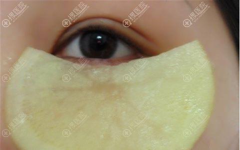 用土豆片能消除眼袋吗