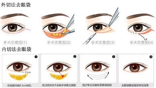去眼袋手术方法示意图