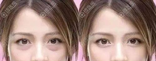 去眼袋术前术后对比图