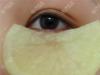 土豆能消除眼袋吗?为什么大家相信土方法却不用手术祛眼袋