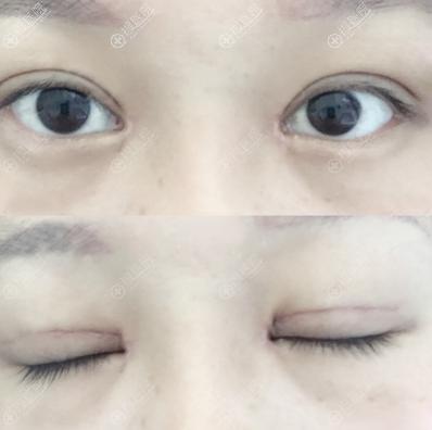 双眼皮手术拆线后睁眼闭眼效果