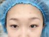 在汕头华美整形医院做双眼皮隆鼻手术的时候是我妈陪我一起去的