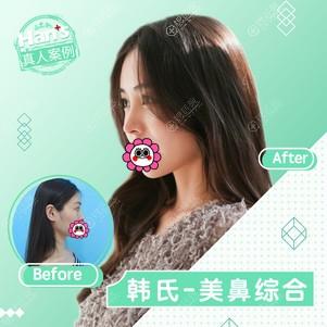 济南韩式鼻综合整形效果怎么样?
