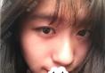 深圳美丽方案姚尧给我做硅胶假体隆鼻后鼻梁挺了鼻翼小了人美了