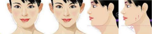 脂肪填充过量脸下垂通过吸脂/溶脂进行改善